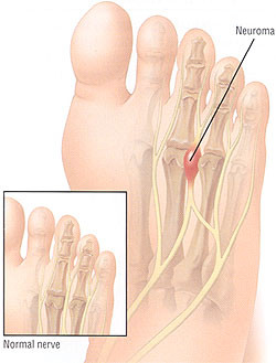 Mortons Neuroma - The Foot Pod