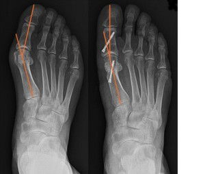 Bunion - The Foot Pod