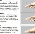 Claw toe, hammer toe - The Foot Pod
