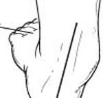 Flat foot - The Foot Pod