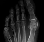 Tailors bunion - The Foot Pod